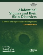 Abdominal Stomas and Their Skin Disorders,Second Edition